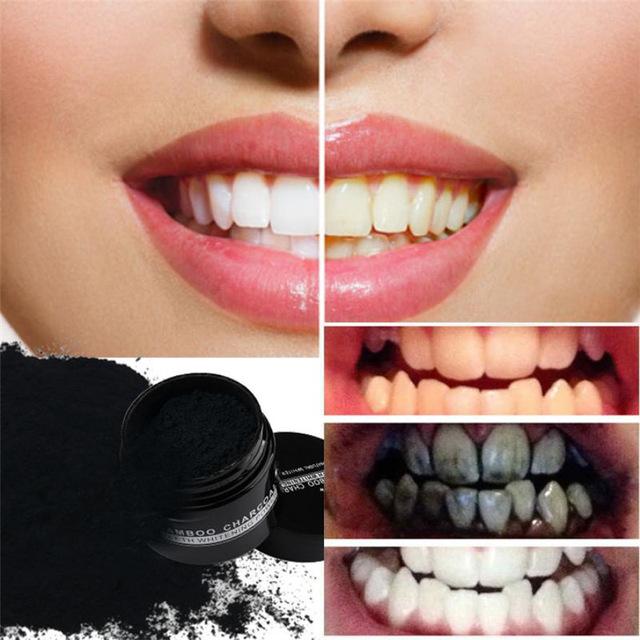 blanchiment des dents charbon