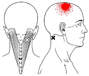 boule nuque cervicale